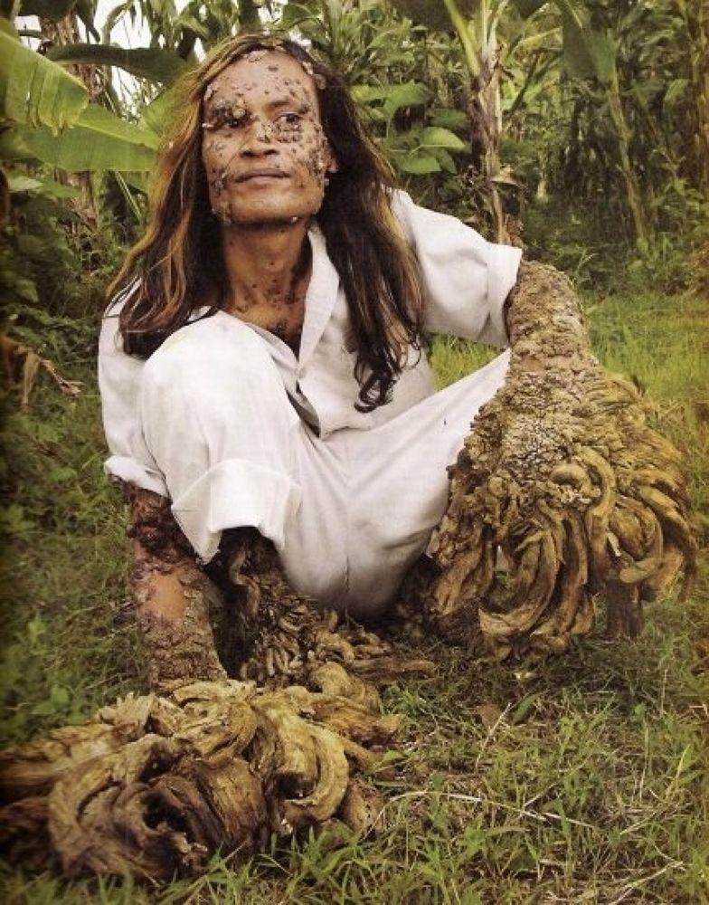 Photo in Random #treeman